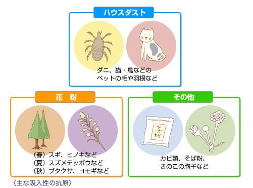 アレルギーの抗原